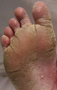 Annique Athletes Foot Rooibos Miracle